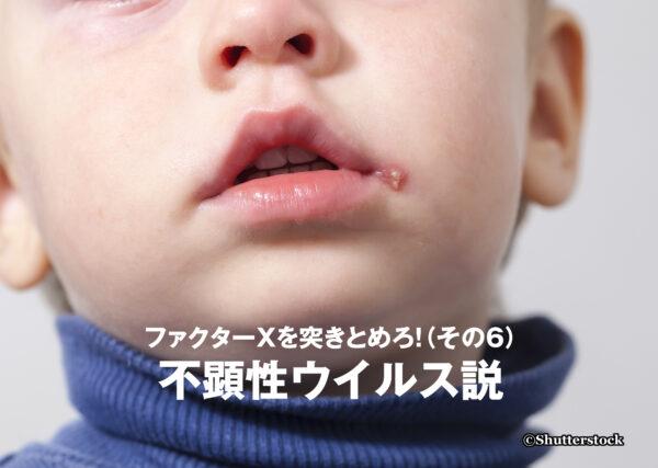 ファクターXを突きとめろ!(その6)不顕性ウイルス説